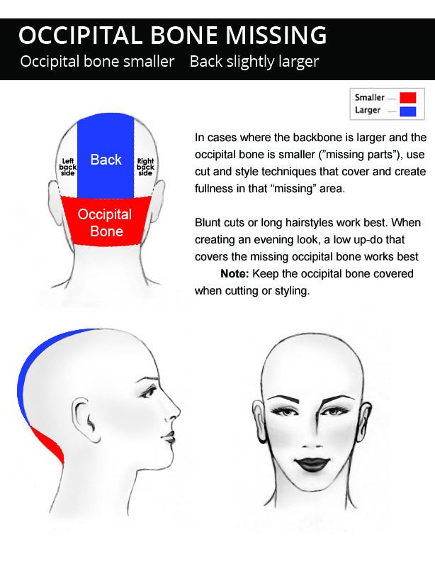 Occipital-bone-missing-head-shape-descri