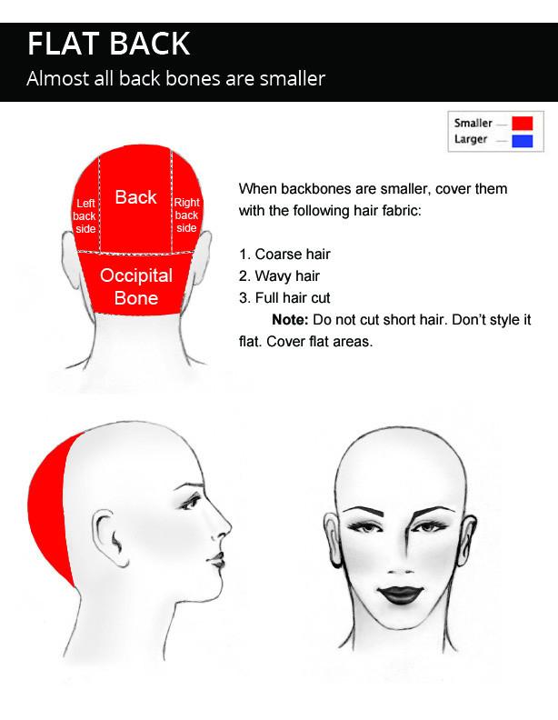 FLAT-BACK-Head-Shape-description.jpg