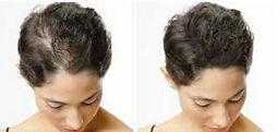 Haarbodenverdichtung
