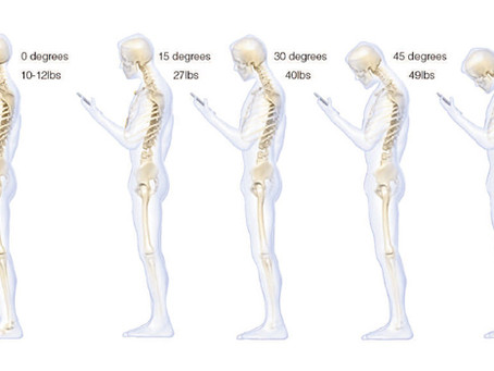 OMG, you're texting your way to back pain!