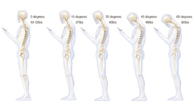 bad-posture-smartphones.jpg