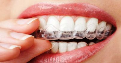 Grinding your teeth? Maybe you are not even aware of it?