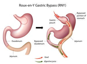 Laparoscopic-Gastric-Bypass-ReY-300x220.