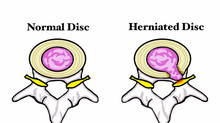 Low Back Pain Causes Part 3: Disc herniation and sciatica