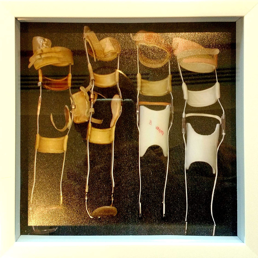 Keep Moving with Orthoses