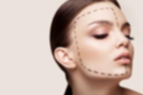 facelift-procedure.png