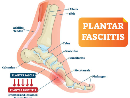 Custom Orthotics, Foot Pain, and Planter Fasciitis