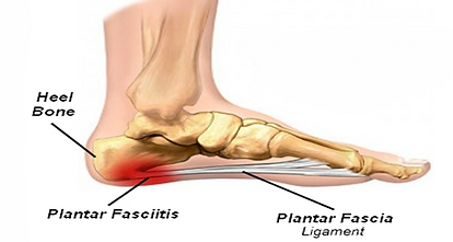 Get Relief From Plantar Faciitis. Stoney Creek Parkway Back and Foot