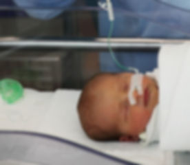Feeding Tube Being Used.jpg