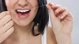Atmintinė po estetinio dantų plombavimo