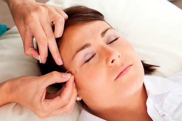facial-rejuvenation-acupuncture.jpg