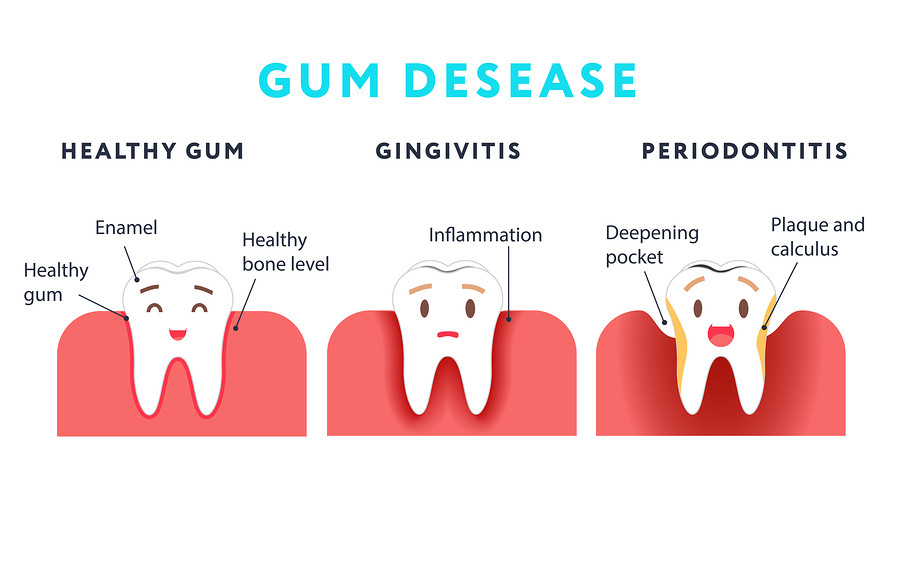 Read This if Your Gums Bleed When You Brush