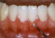 periodontal-cause.jpg