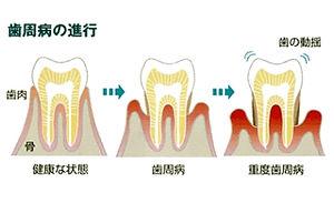 periodontal-symptom.jpg