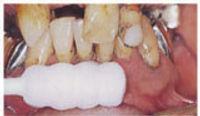 periodontal-02.jpg