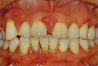 periodontal-05.jpg