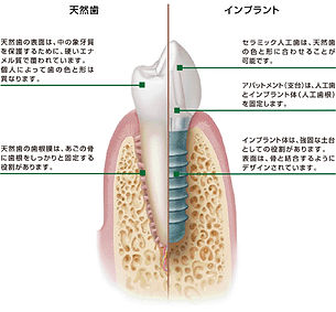 Implant-natural.jpg