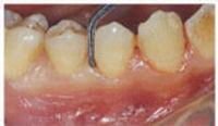 periodontal-01.jpg