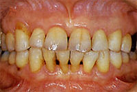 periodontal-06.jpg