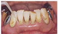 periodontal-03.jpg