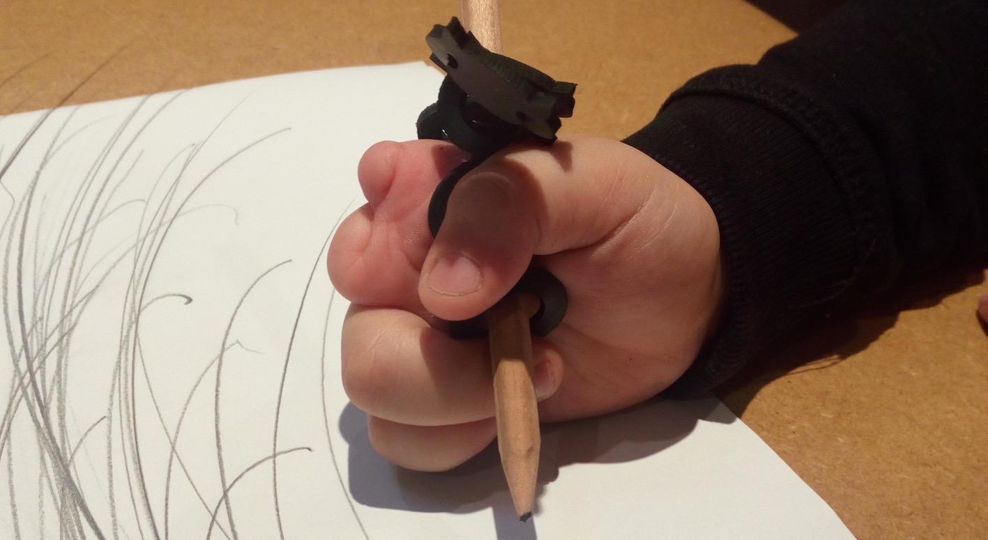 agenesis finger