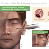 Med-Legal: Bell vs Wigmore (2017)