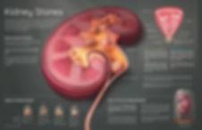 Pathology of Kidney Stone Disease (2017)