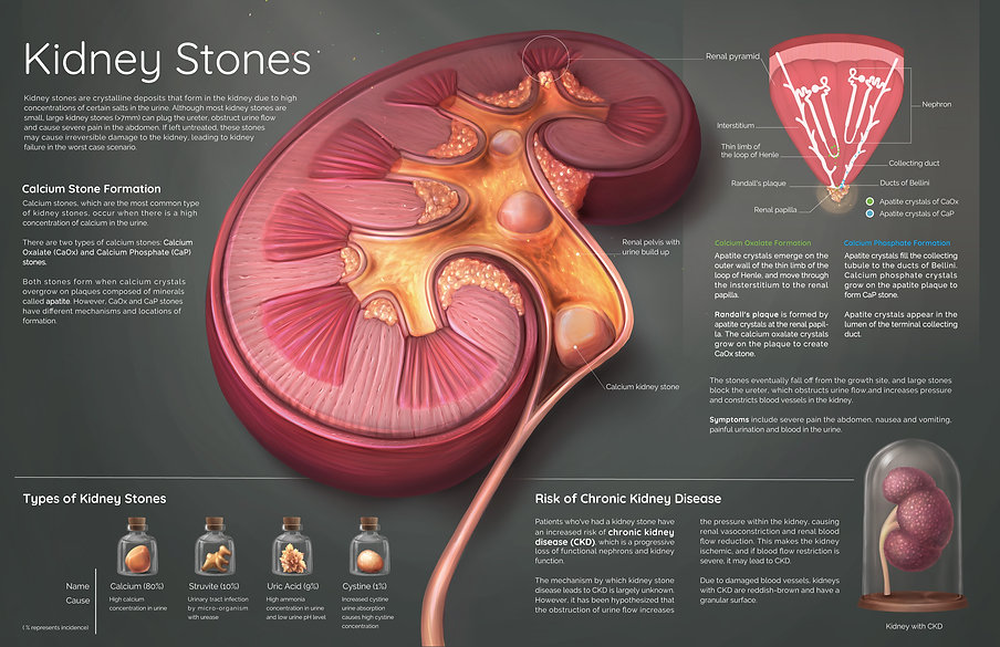 Pathology of Kidney Stone Disease (2017)