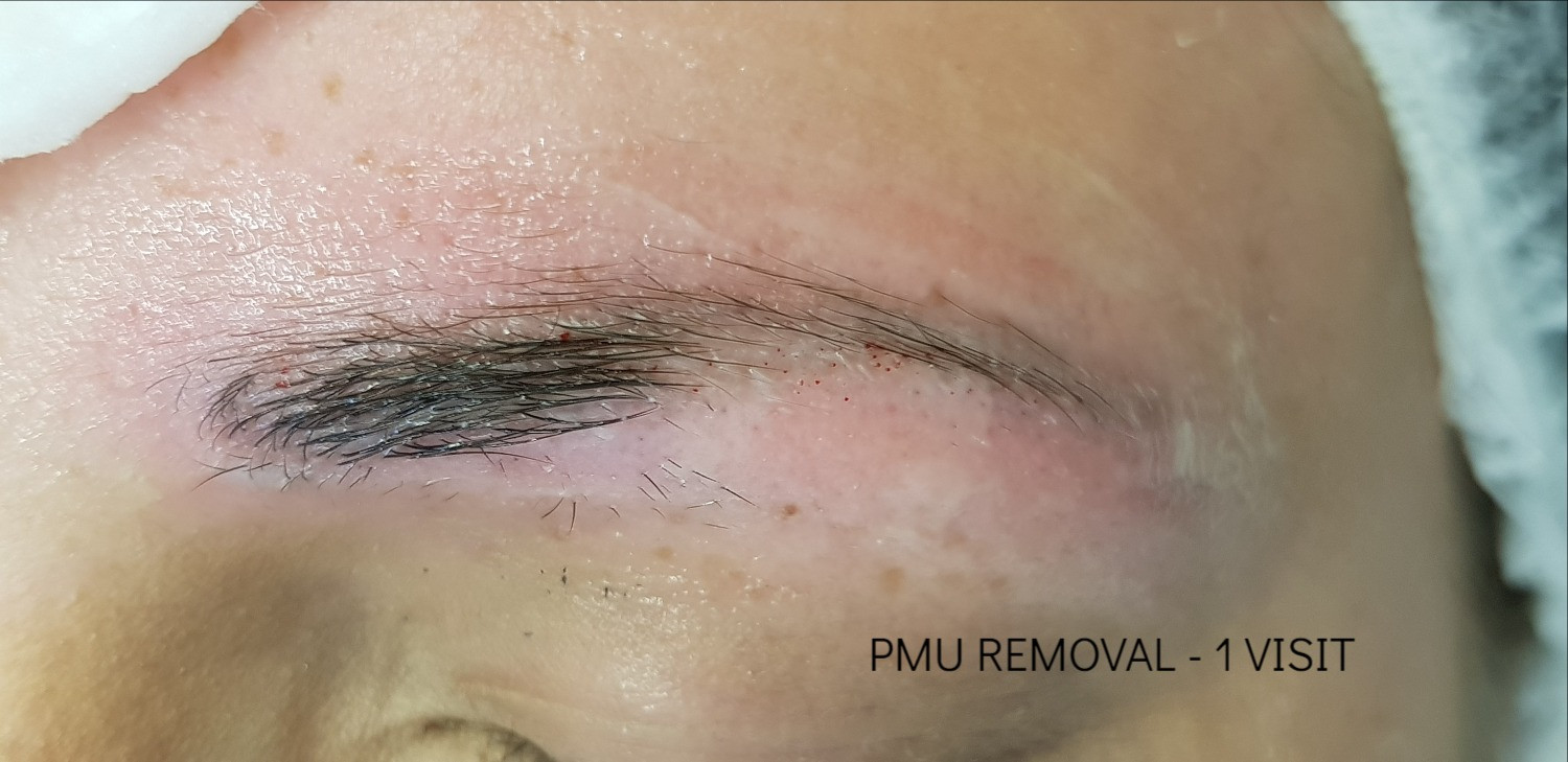 eyebrow tattoo removal after