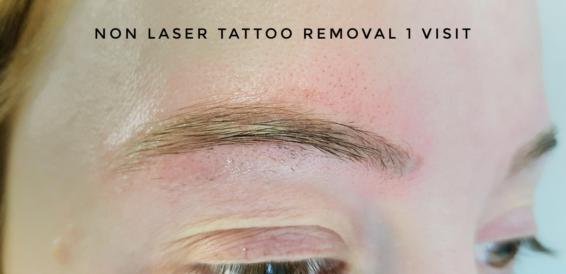 tattoo removal 1 session