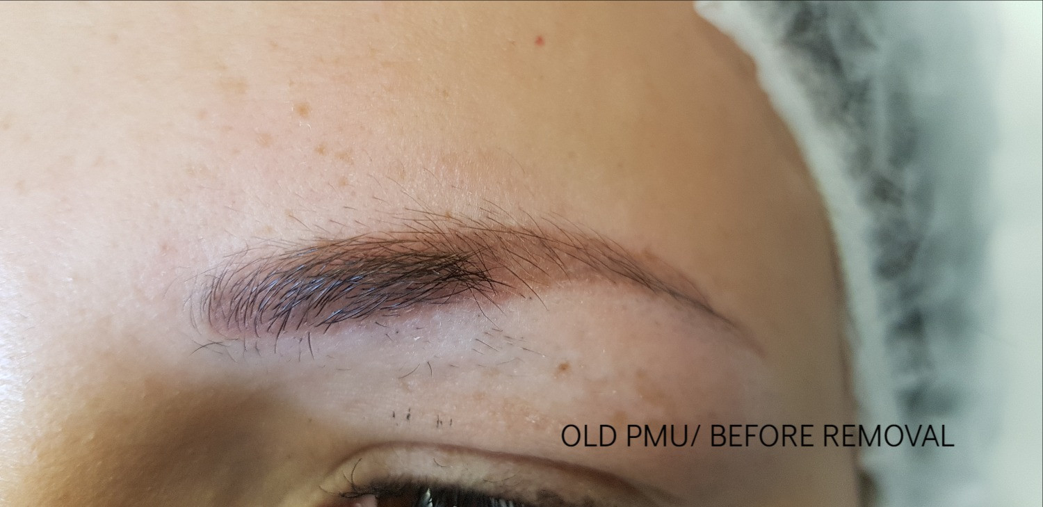 eyebrow tattoo removal before