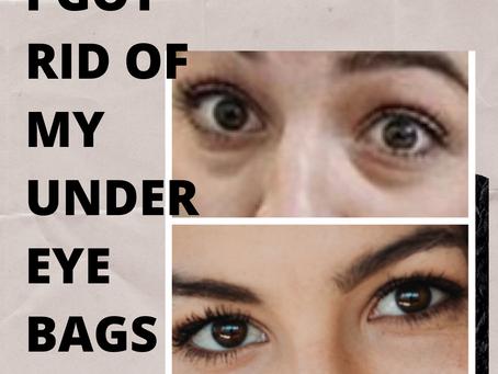 I Got Rid of my Under Eye Bags!