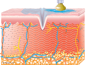 collagen_synthesis_begins-copy-1.png