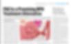 Prostate Artery Embolization, Renal and Urology News, Wilson Medical Writing LLC, Florida Medical Writer