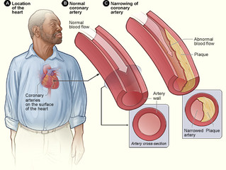Why You Need to Check Your Cholesterol Every 5 Years