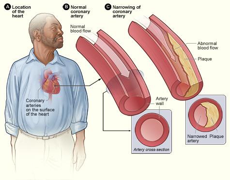 LDL cholesterol clogs arteries