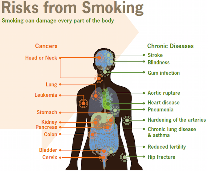 Smoking damages every part of the body