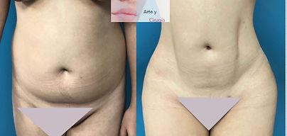 liposuccion , cirujano plastico Cuernava