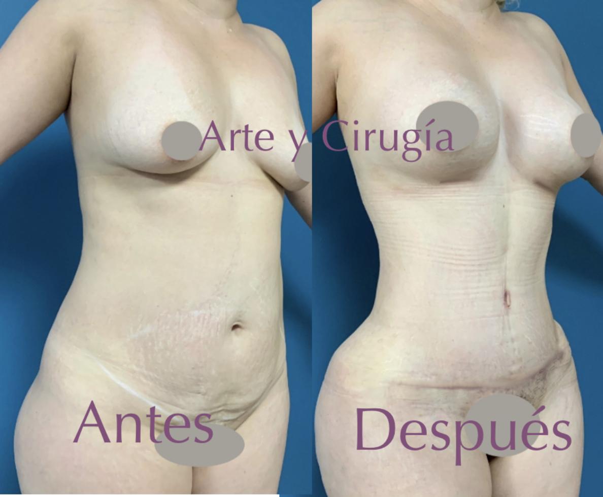 Abdominoplastia, liposucción, implantes
