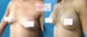 implantes cuernavaca, implantes de seno