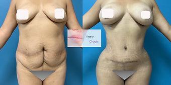 abdominoplastia cirujano Cuernavaca