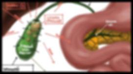 gastroenterologo piedras en vesicula