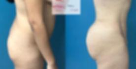 cirujano cuernavaca aumento glúteos, lipotransferencia