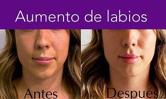 aumento de labios.jpg