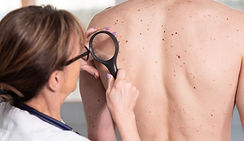 Skin cancer - Put sun lotion on your back with Bag-A-Rub