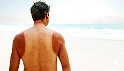 prevent sun burn on your back