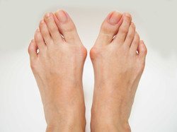 Bunions and Hammertoes