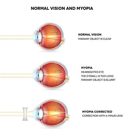 myopia eye.jfif