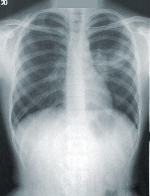 X-ray%20showing%20Pneumonia_edited.jpg