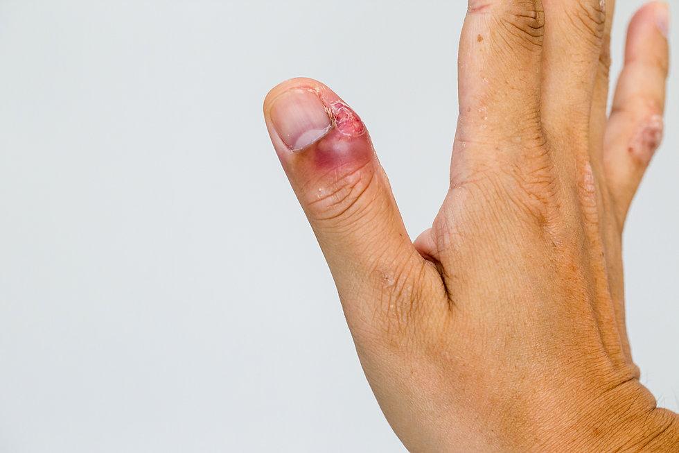 Paronychia, swollen finger with fingerna
